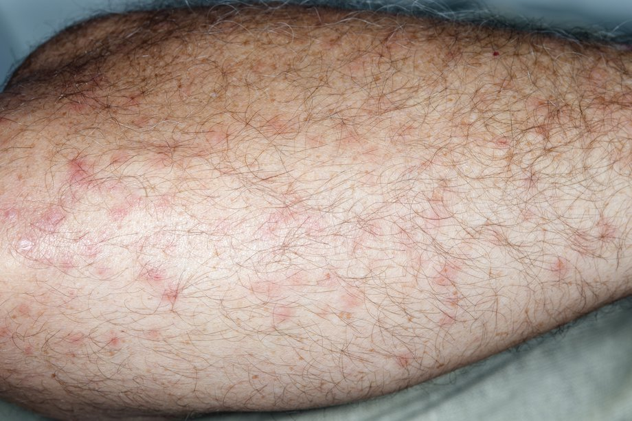 How to Identify Biting Gnats and Treat Bites - Disinpest